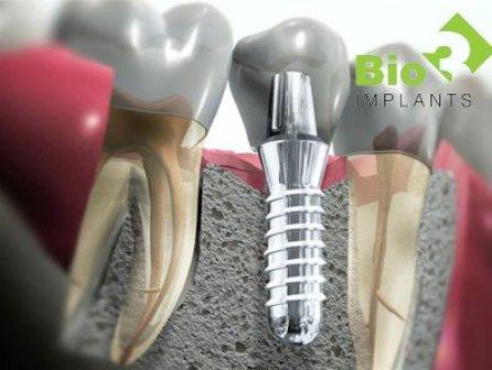 Немецкая система имплантатов Bio3